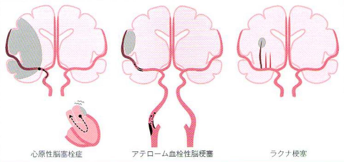 一過性脳虚血発作 (TIA ...